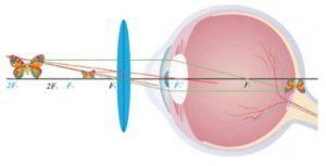 О современных проблемах со зрением