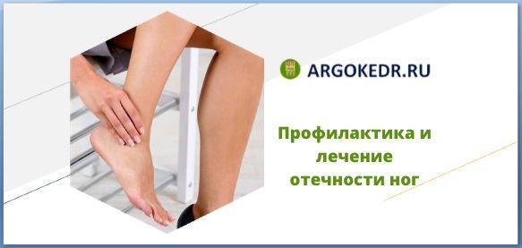 Профилактика и лечение отечности ног