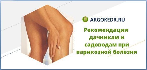 Рекомендации Арго при варикозной болезни