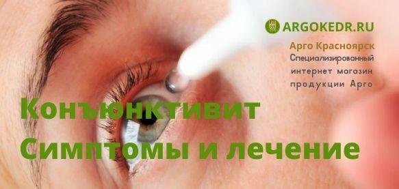 Конъюнктивит. Симптомы и лечение