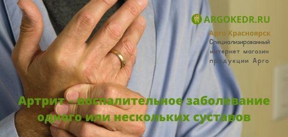 Артрит – воспалительное заболевание одного или нескольких суставов