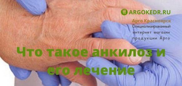 Что такое анкилоз и его лечение