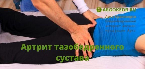 Артрит тазобедренного сустава